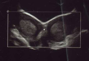 double uterus ultrasound