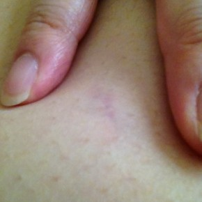 "Belly stretchmark that looks like a ""4"""